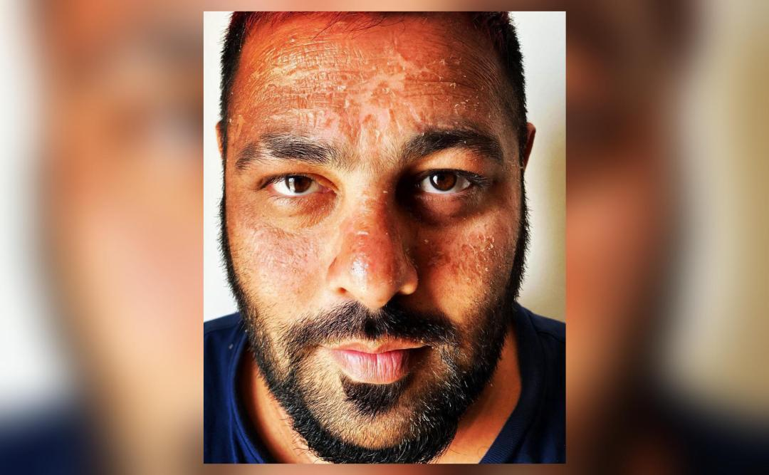 Badshah gets sunburnt during vacation in Maldives, shares ...